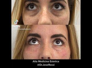 Eliminación de las ojeras - Clínica Rossi Lemarie