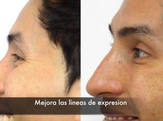 CLINICAS DH Clínicas Médico - Rejuvenecimiento facial