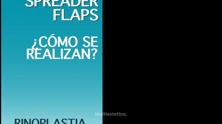 Spreader Flaps