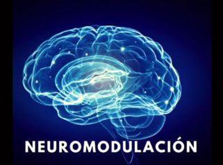 Neuromodelación