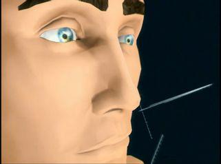 La rinoplastia para mejorar también la funcionalidad de la nariz