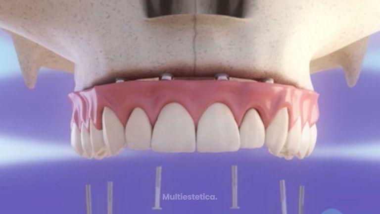 Rehabilitación superior con implantes.