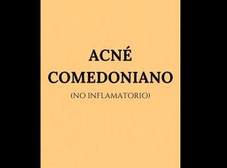 Acné comedoniano - Clínica Openderma