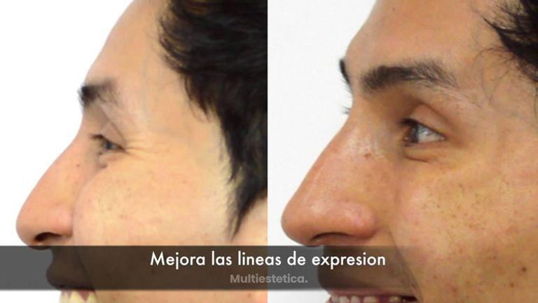 CLINICAS DH Clínicas Médico - Rejuvenece tu piel