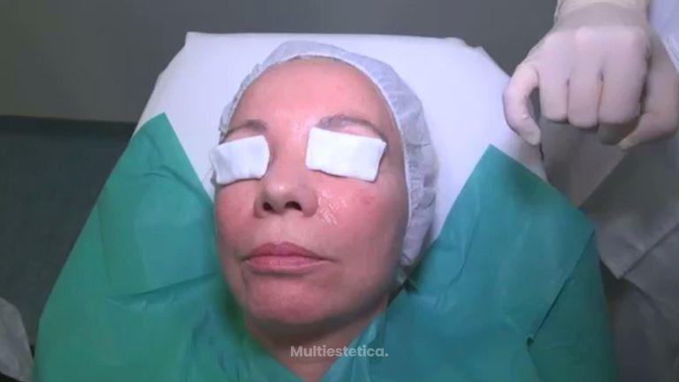 Cómo combatir los poros abiertos