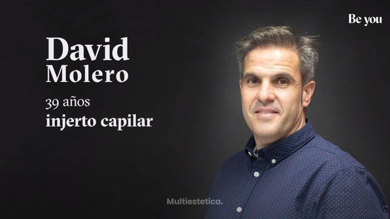 Injerto Capilar- David nos cuenta su experiencia