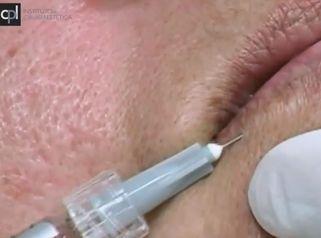 Relleno de contorno de labios