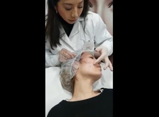 Clínica Dra. Any Ramírez - Hilos tensores