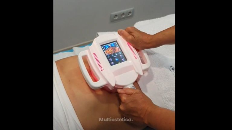 Celulitis - Clínica de estética Dr. del Pino