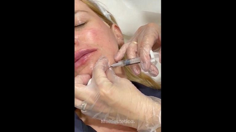 Ácido hialurónico - Dra. Any Ramírez