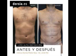 Antes y después Lipo HD