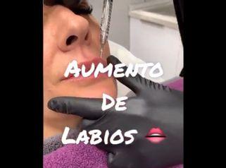 Aumento de labios - Clínica Dra Rigo