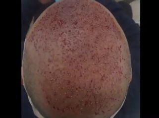 Técnica FUE tratamiento capilar - Clínica Pedralbes