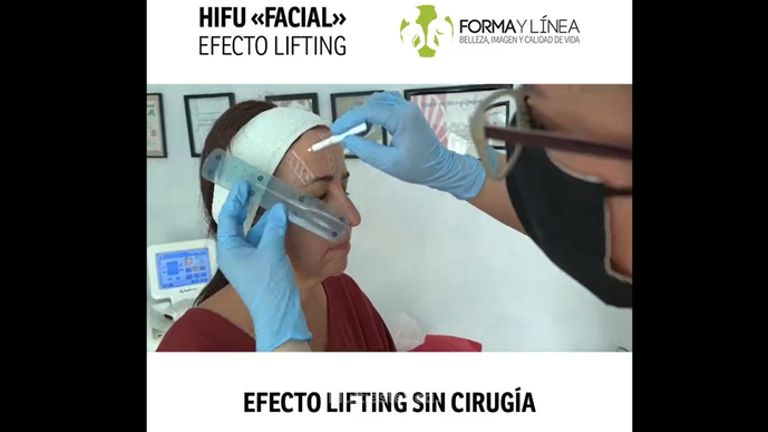 Tratamiento facial - lifting sin cirugía HIFU - Forma Y Línea Murcia