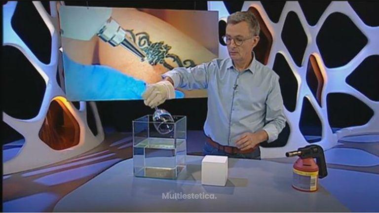 Eliminació de tatuatges