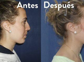 Rinoplastia Sevilla | Experiencia personal sobre su operación de nariz
