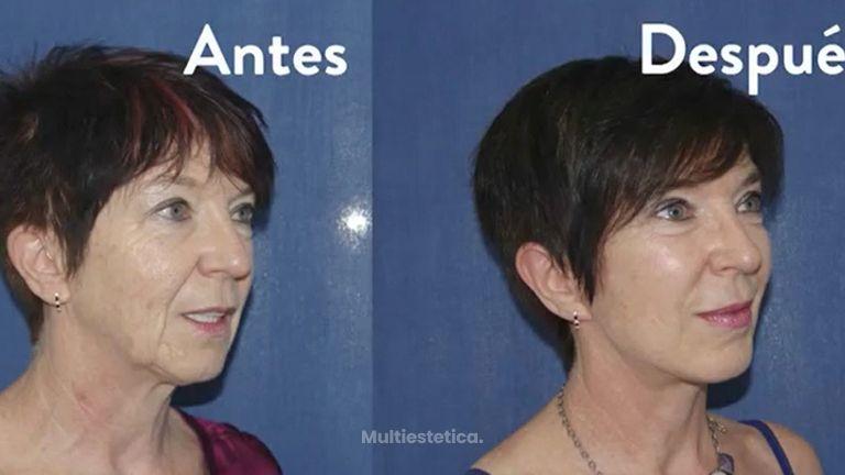 Testimonio Lifting y Blefaroplastia en Aurea Clinic