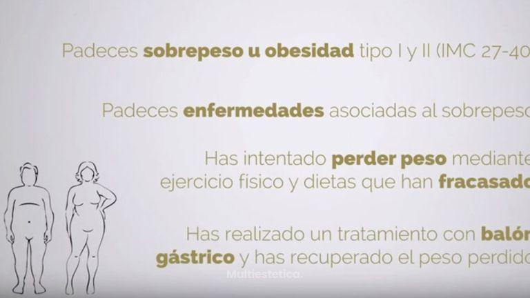 Método POSE de reducción de estómago sin cirugía