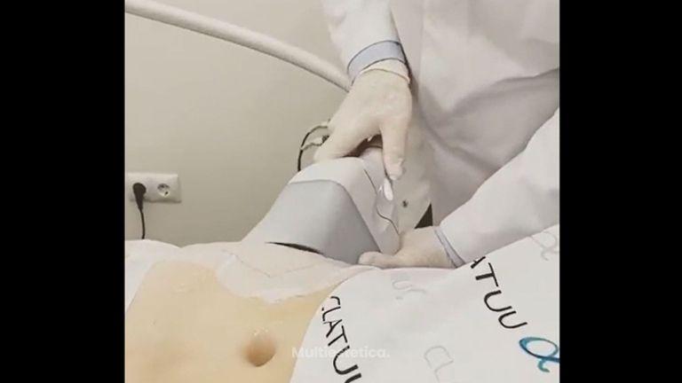 Criolipólisis - Clínica Dr. Carvajal