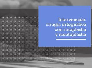 Intervención rinoplastia