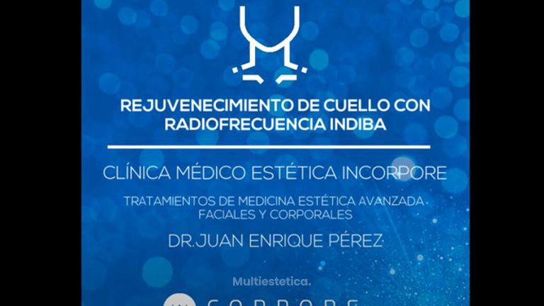 Rejuvenecimiento de Cuello con Radiofrecuencia INDIBA