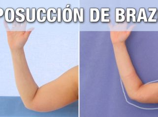 Resultados de Liposucción de Brazos