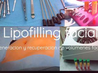Lipofilling - Clínica Montecarmelo