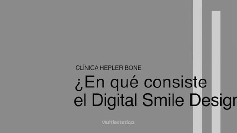 ¿En qué consiste el Digital Smile Design (DSD)?