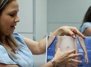 Abdominiplastia antes y despues
