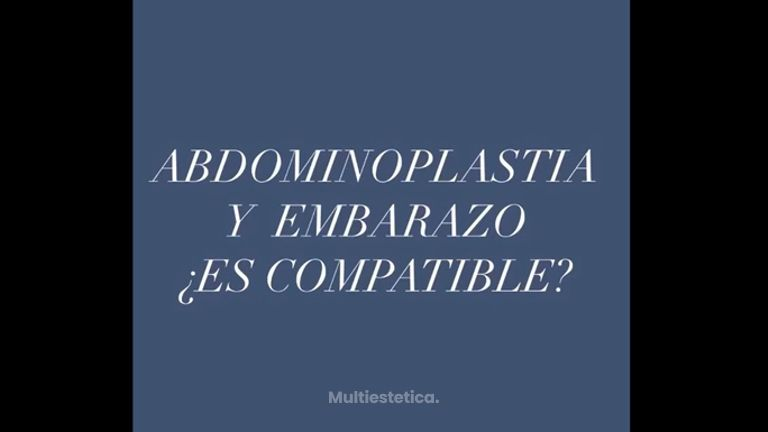 Abdominoplastia y embarazo