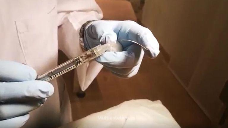 En Clínica Rinos realizamos el aumento de labios con cánula ésta nueva técni