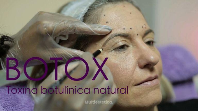La toxina botulínica, una proteína natural