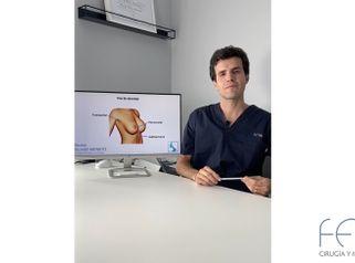 Aumento de pecho - Dr. Jesús Olivas Menayo