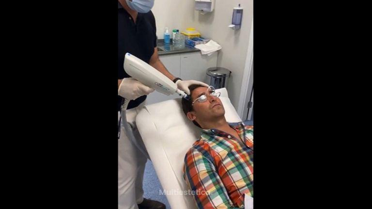 Laser CO2 fraccionado - Dr. Felipe Castillo