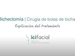 Cirugía de Bolas de Bichat o Bichectomía en Madrid por Dr Macía