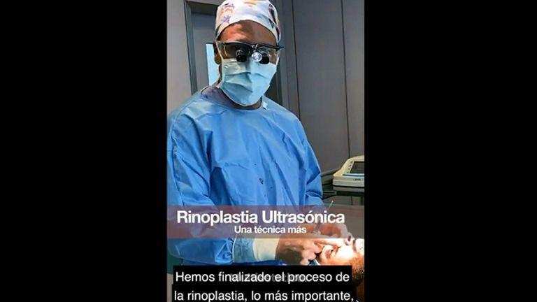 Rinoplastia ultrasónica - IM CLINIC
