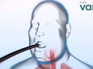 Método Apollo - Reducción Gástrica sin cirugía