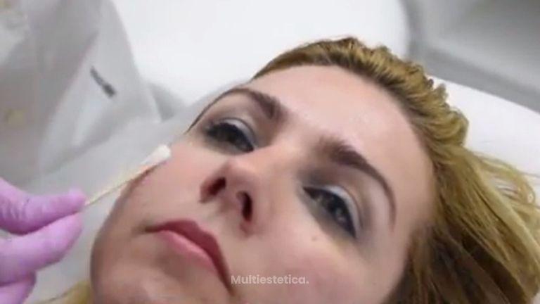 Rejuvenece tu rostro sin someterte a una cirugía