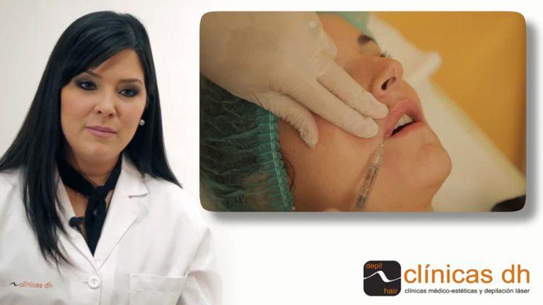 ¿Cuánto dura el aumento de labios con ácido hialurónico?