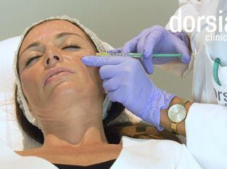 Bótox - Dorsia Clinicas De Estética