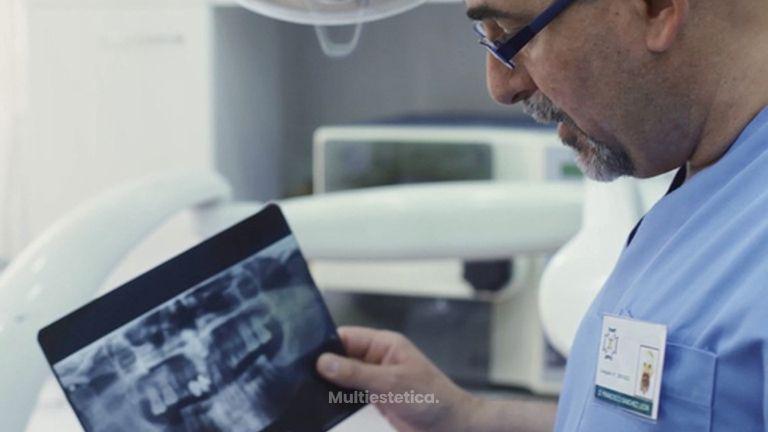 Los implantes dentales, cuestión estética y funcional