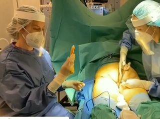 Lipofilling glúteo - Dra. Ana Martinez Padilla