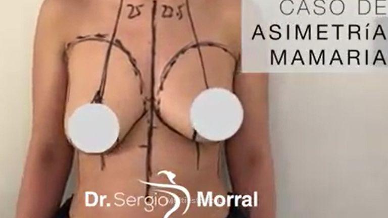 Asimetria mamaria - Dr. Sergio Morral