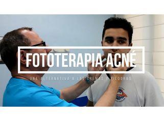 Tratamientos para eliminar el acné y las cicatrices