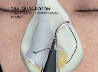 Dra. Silvia Roson - Rinoplastia