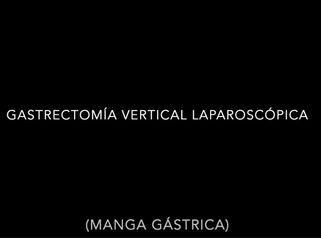 Manga Gástrica - Dr. David Martinez Cecilia