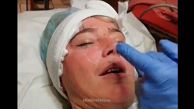 Relleno de Botox