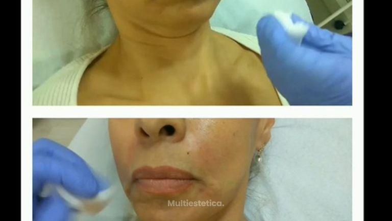 Tratamiento Facial