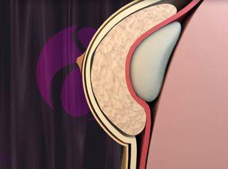 Aumento de senos en Clínicas Dorsia