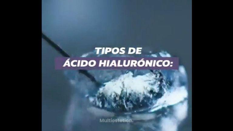 Tipos de Ácido hialurónico - De Saja Medicina Estética